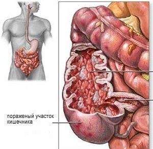 пораженный участок кишечника