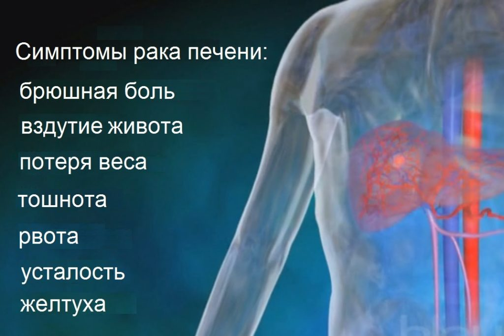 Симптомы рака печени