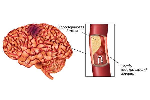Инсульт как одно из последствий повышенного уровня фибриногена