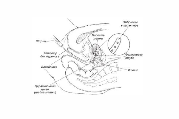 Схема переноса эмбрионов в матку
