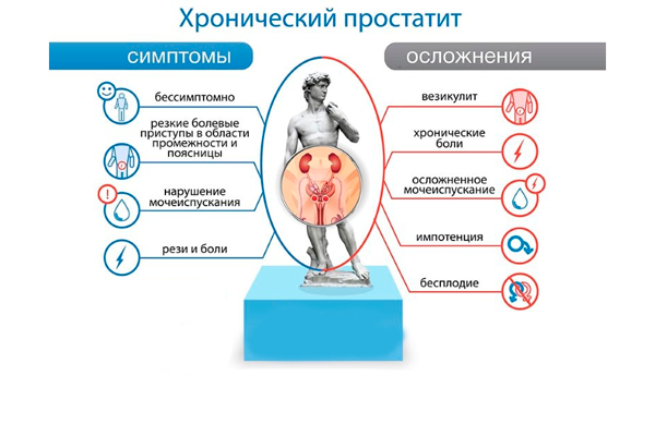 Симптомы и осложнения при простатите