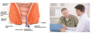 Лечение прямой кишки