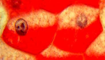 Гликоген: энергетические резервы человека - почему важно знать о них, чтобы похудеть?