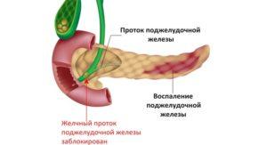 Строение желчного протока