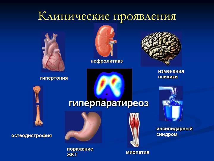 Гиперпаратиреоз