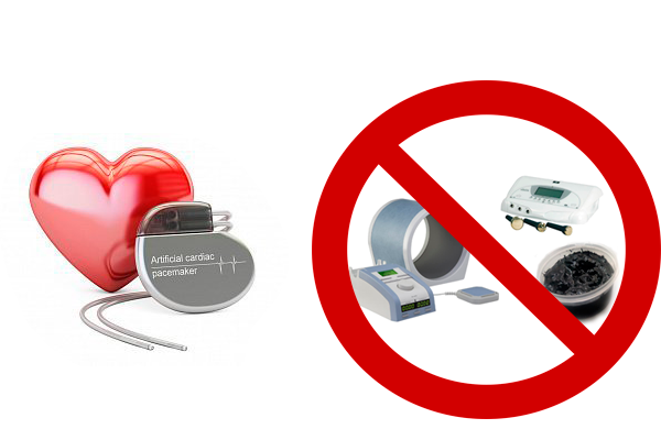 Запрет на физиотерапевтические процедуры при наличии кардиостимулятора