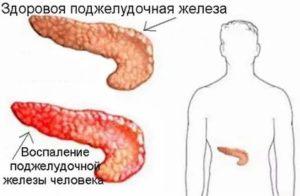 вид здоровой железы