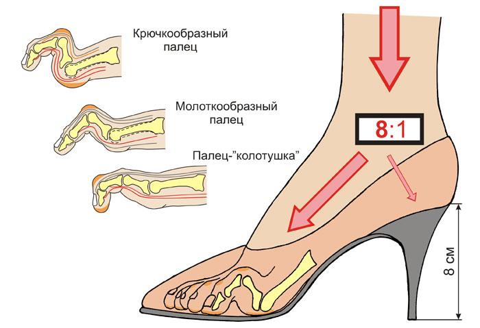 Реальный вред высоких каблуков для здоровья: правда или вымысел?