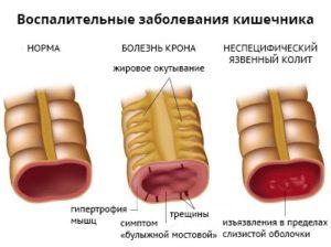 воспалительные заболевания кишечника