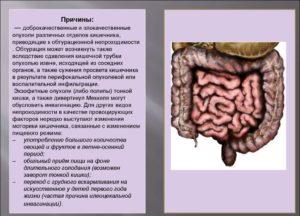 Причины кишечной непроходимости