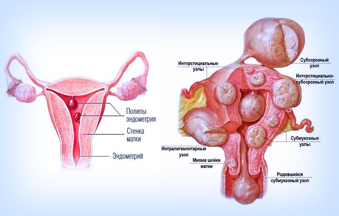 Проявление Аденомиоза в матке женщины