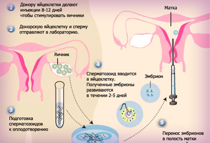 Как проходит Эко с донорской яйцеклеткой