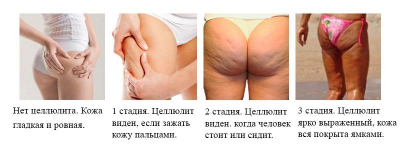 Дряблость,целлюлит,обвисание кожи,растяжки/стрии,обертывания для похудения в домашних условиях