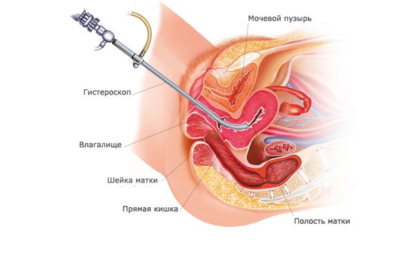 Схема процедуры гистероскопии