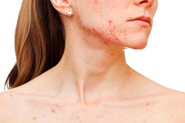 Угревая сыпь, как один из симптомов олигоменореи