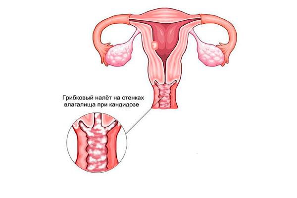 Возможный вагинальный кандидоз в следствии применения противозачаточных средств