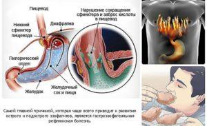 причины рефлюкс эзофагита