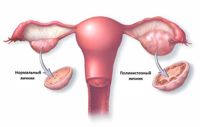 схема яичника