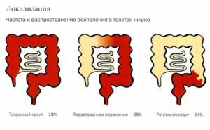 Локализация колита кишечника