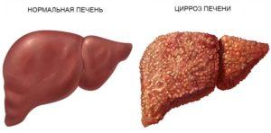 лечение цирроза печени народными средствами