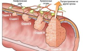 Аденокарцинома толстой кишки стадий