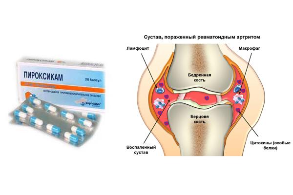 Лечение ревматоидного артрита Пироксикамом