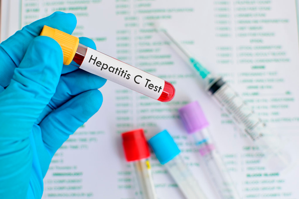 Необходимый анализ на гепатит на 18-й недели беременности
