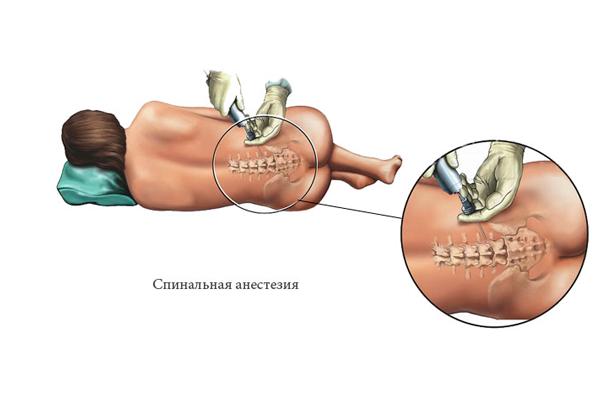 Анестезия перед операцией кесарева сечения