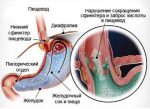 неэрозивный рефлюкс эзофагит что это такое