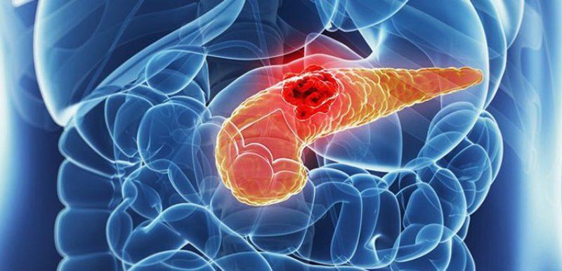 Что представляет собой инсулинома поджелудочной железы