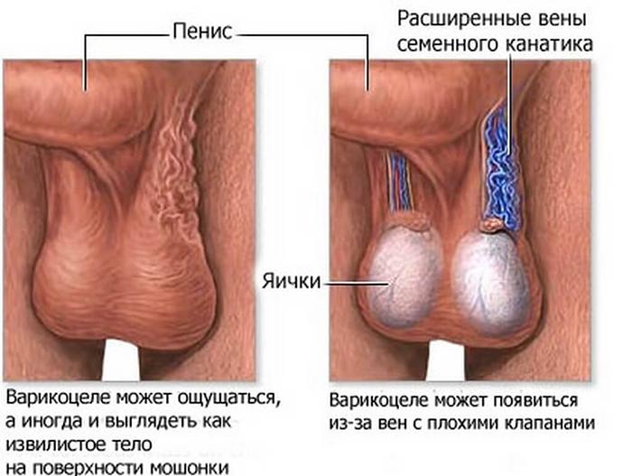 Появление варикоцелей