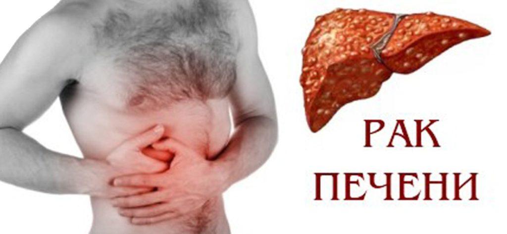 рак печени признаки и симптомы
