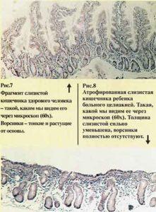 Диагностика целиакии