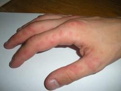 Красная потница на руках