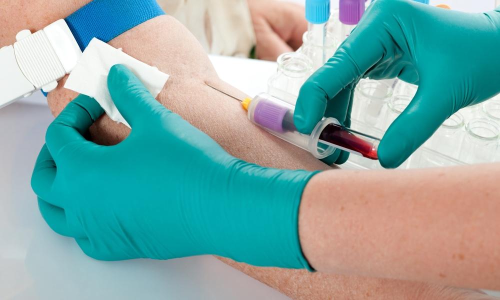 Сдать анализ крови из вены