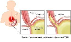 питание при рефлюкс эзофагите