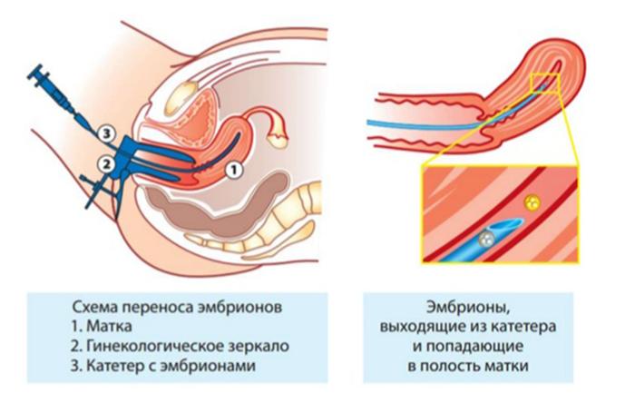 Перенос Эмбрионов в полость матки