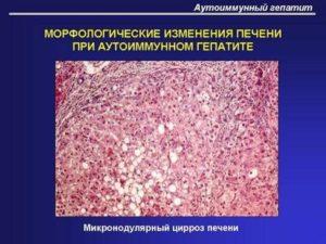 3 типа аутоиммунного гепатита