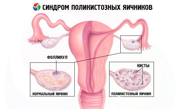 нормальный и поликостозный яичник