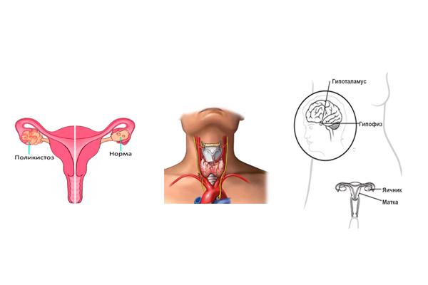 Болезни приводящие к гормональному бесплодию у женщин
