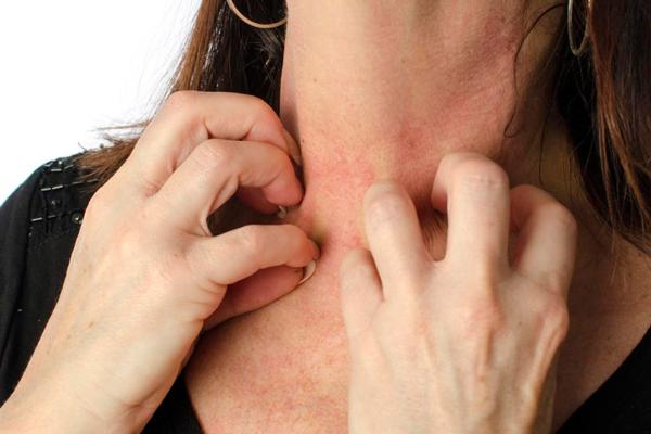 Возможная аллергическая реакция на мед