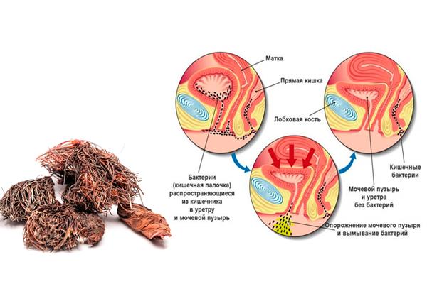 Лечение Красной щеткой цистита