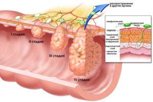 рак кишечника 4 стадии сколько осталось жить