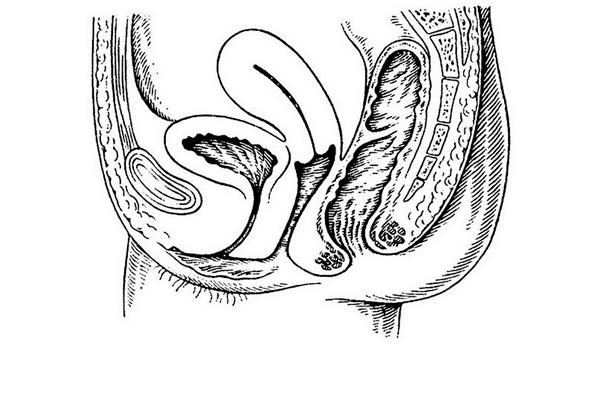 Антеверзия шейки матки
