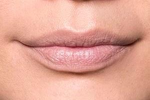 сохнут губы в начале беременности