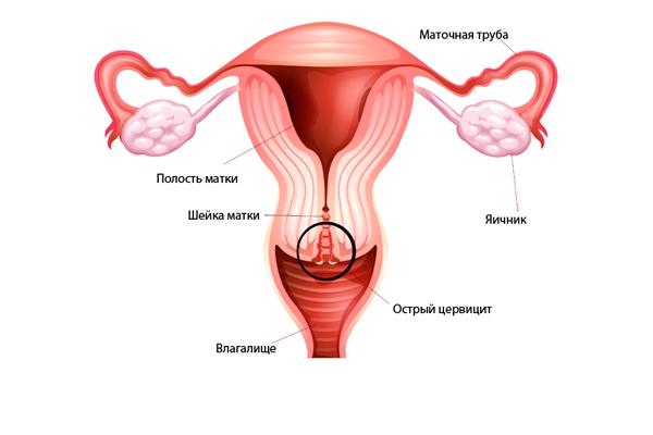 Цервицит, как одна из причин кровотечения шейки матки