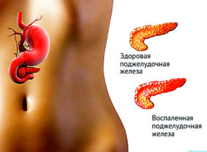 Симптомы заболевания поджелудочной железы
