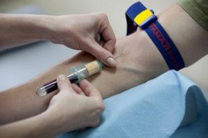 биохимический анализ крови при циррозе печени показатели