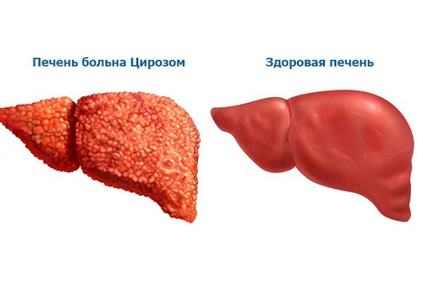 Повышение пролактина из-за цирроза печени