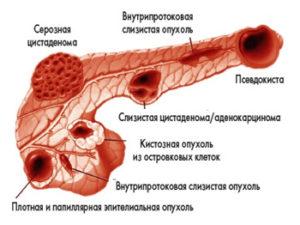 Разновидности кист поджелудочной железы